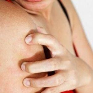 Алергічні прищі на обличчі й тілі: як лікуватися?