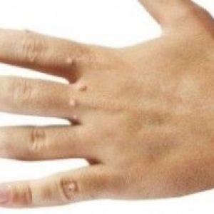 Бородавки на руках: причини і лікування