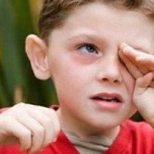 Що робити, якщо під очима з`являються червоні кола?