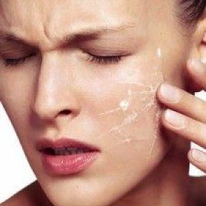 Чутлива шкіра обличчя: тонкощі догляду в домашніх умовах