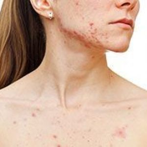 Демодекоз: лікування шкіри обличчя