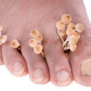 Грибкові захворювання шкіри: симптоми і лікування