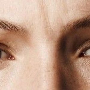 Шкіра під очима тонка: що робити, щоб позбутися від темних кіл?