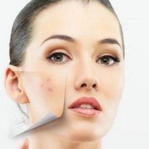 Крем від прищів, вугрів, чорних крапок на обличчі: як правильно використовувати?