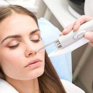 Лазерне лікування акне - вугрів, прищів, плям