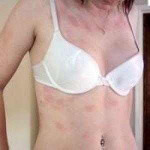 На шкірі лущиться пляма і свербить: чим лікувати?