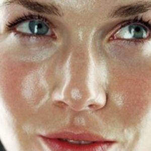 Забезпечуємо особливий догляд для жирної шкіри