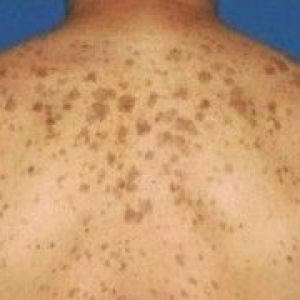 Пігментні плями на спині: чому виникають і як їх позбутися?