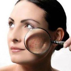 Себорея шкіри обличчя: наскільки велика проблема?
