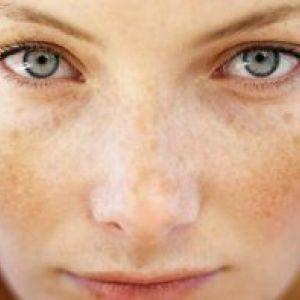 Жовті плями на шкірі: причини появи і як їх лікувати