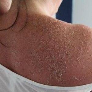 Свербіння і лущення шкіри - як і чим лікувати?