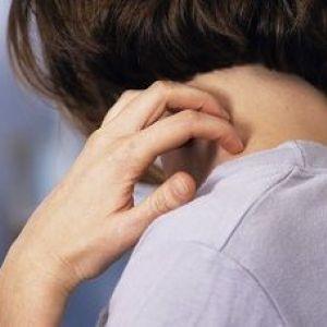 Сверблячка шкіри тіла і голови: причини і лікування